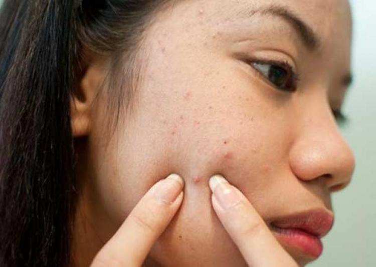 homeopathy cure in acne